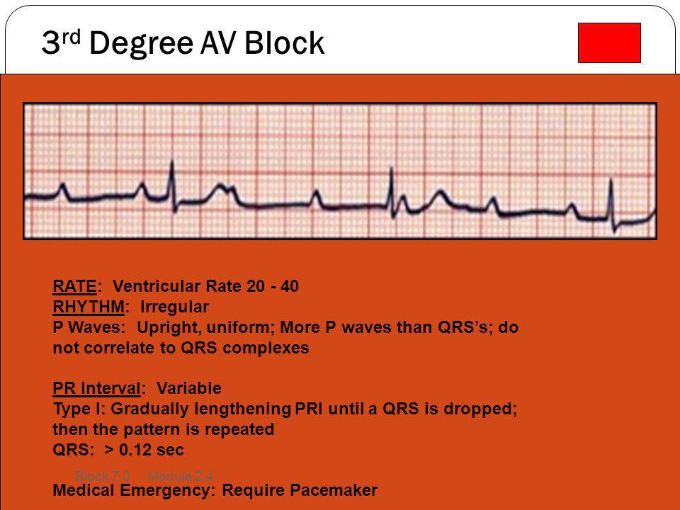 3rd Degree AV Block RATE: Ventricular Rate 20 - 40 RHYTHM: Irregular