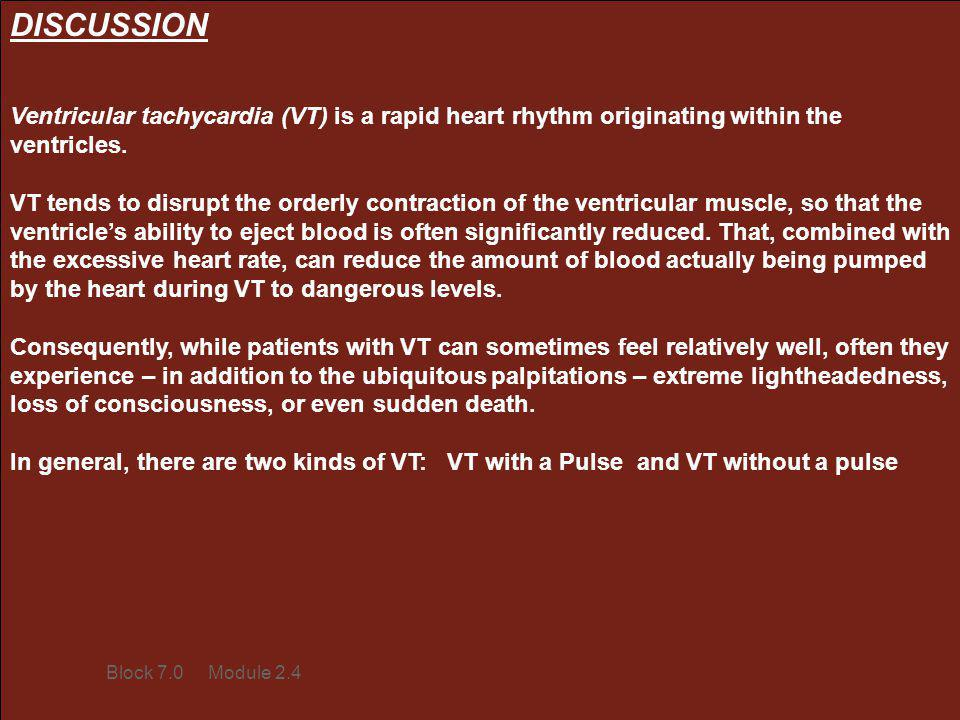 DISCUSSION Ventricular tachycardia (VT) is a rapid heart rhythm originating within the ventricles.