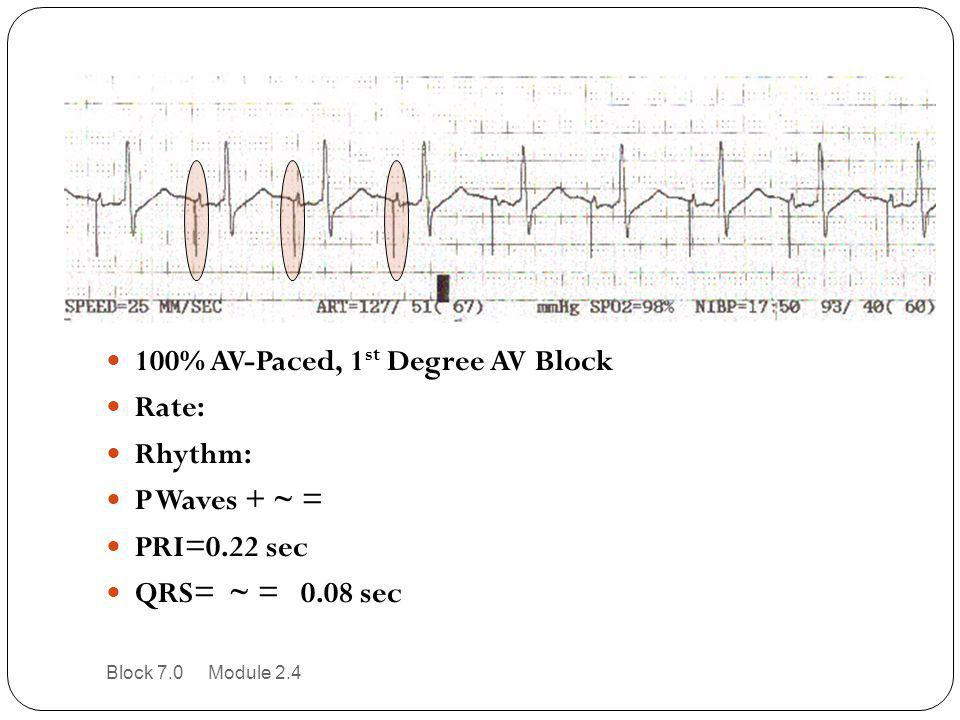 100% AV-Paced, 1st Degree AV Block Rate: Rhythm: P Waves + ~ =