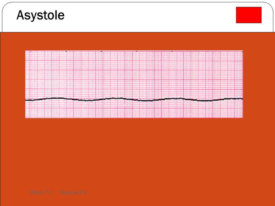 Asystole Block 7.0 Module 2.4