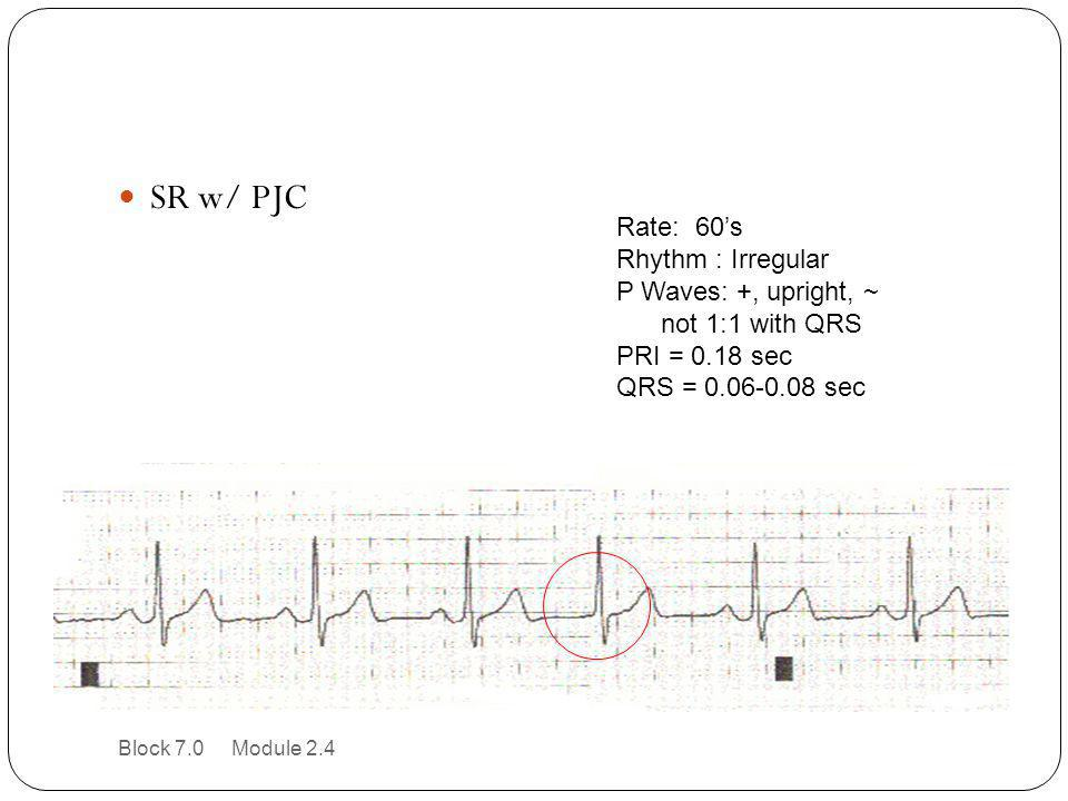 SR w/ PJC Rate: 60's Rhythm : Irregular P Waves: +, upright, ~