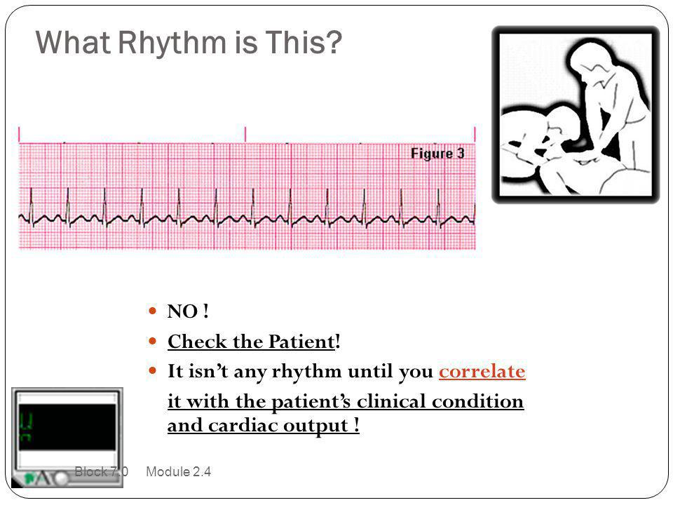 What Rhythm is This NO ! Check the Patient!
