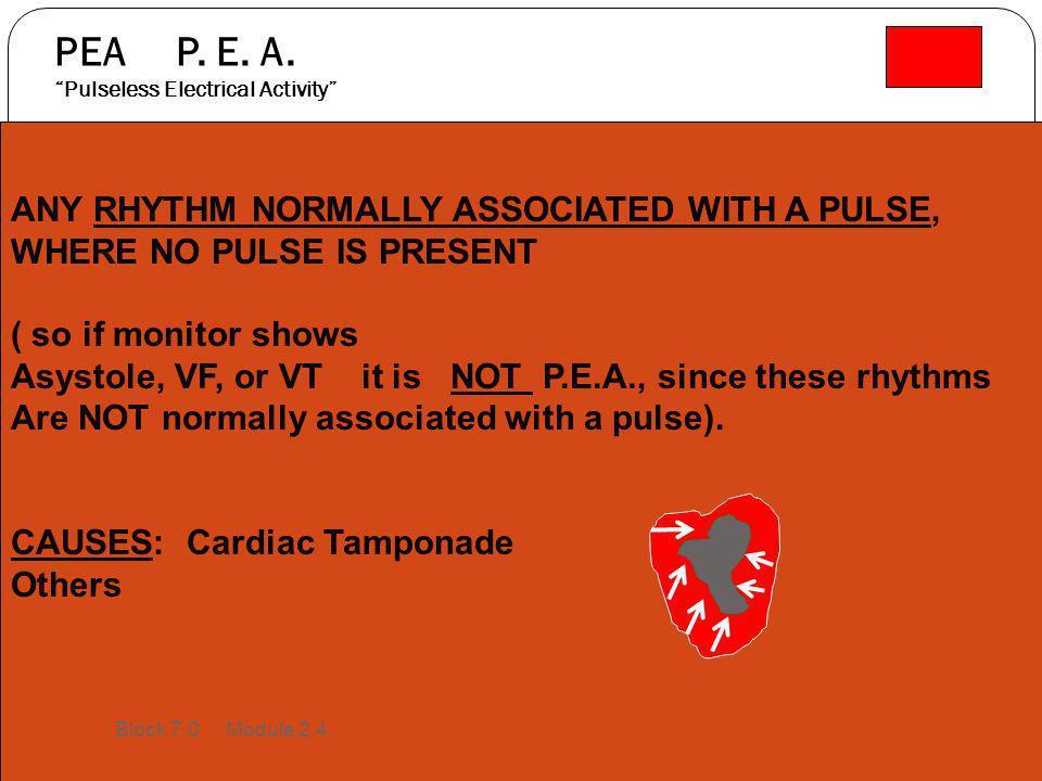 PEA P. E. A. Pulseless Electrical Activity