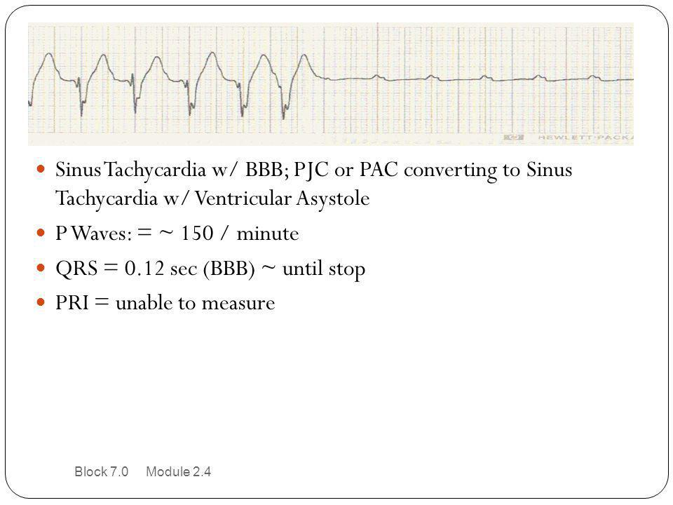 QRS = 0.12 sec (BBB) ~ until stop PRI = unable to measure