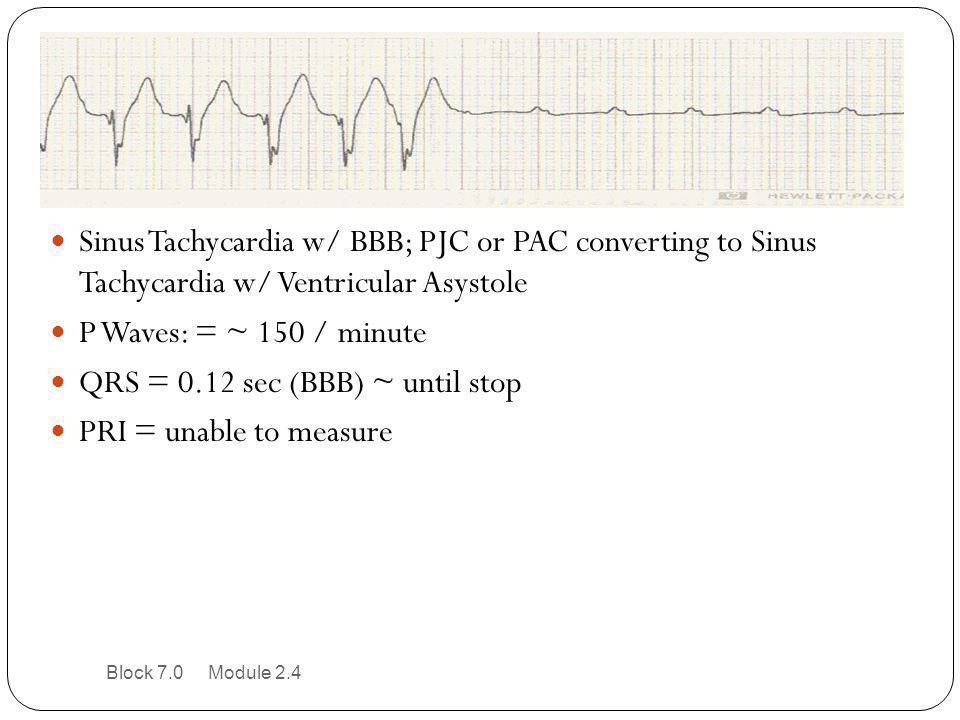 QRS = 0.12 sec (BBB) ~ until stop PRI = unable to measure