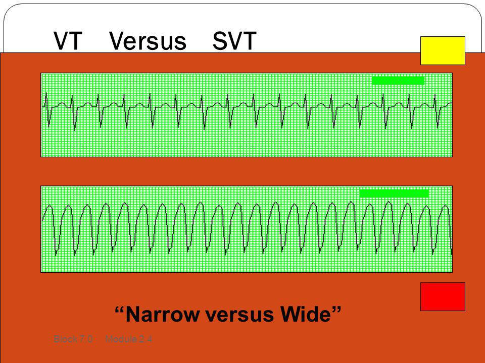 VT Versus SVT Narrow versus Wide Block 7.0 Module 2.4