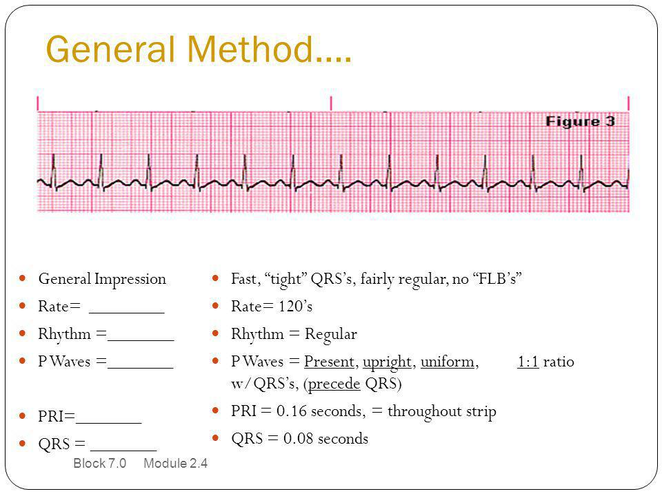 General Method…. General Impression Rate= ________ Rhythm =_______