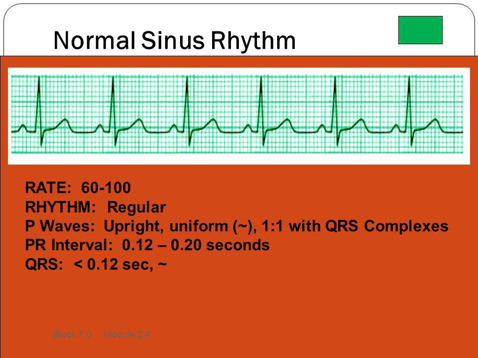 Normal Sinus Rhythm RATE: 60-100 RHYTHM: Regular