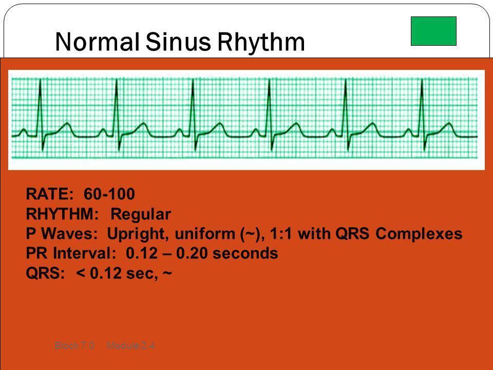 Normal Sinus Rhythm RATE: 60-100 RHYTHM: Regular