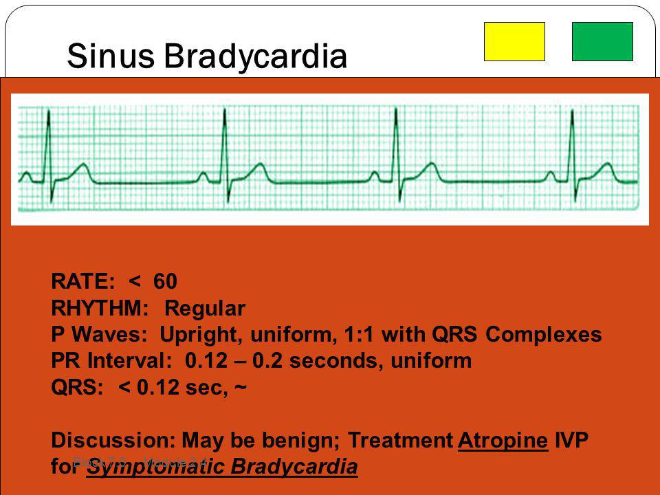 Sinus Bradycardia RATE: < 60 RHYTHM: Regular