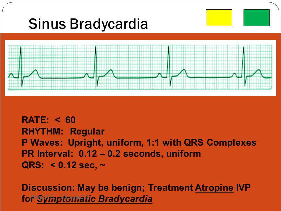 Sinus Bradycardia RATE: < 60 RHYTHM: Regular