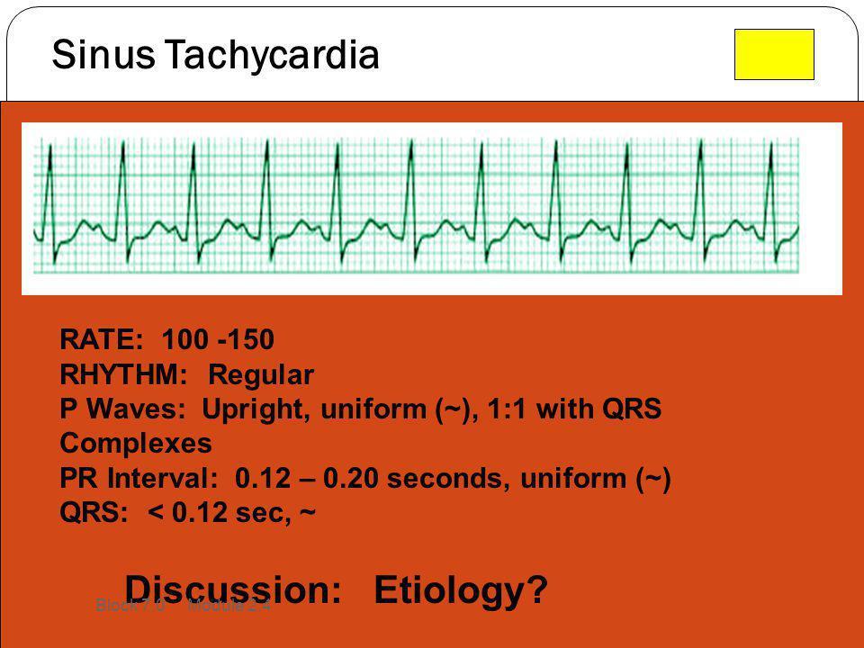 Sinus Tachycardia Discussion: Etiology RATE: 100 -150 RHYTHM: Regular