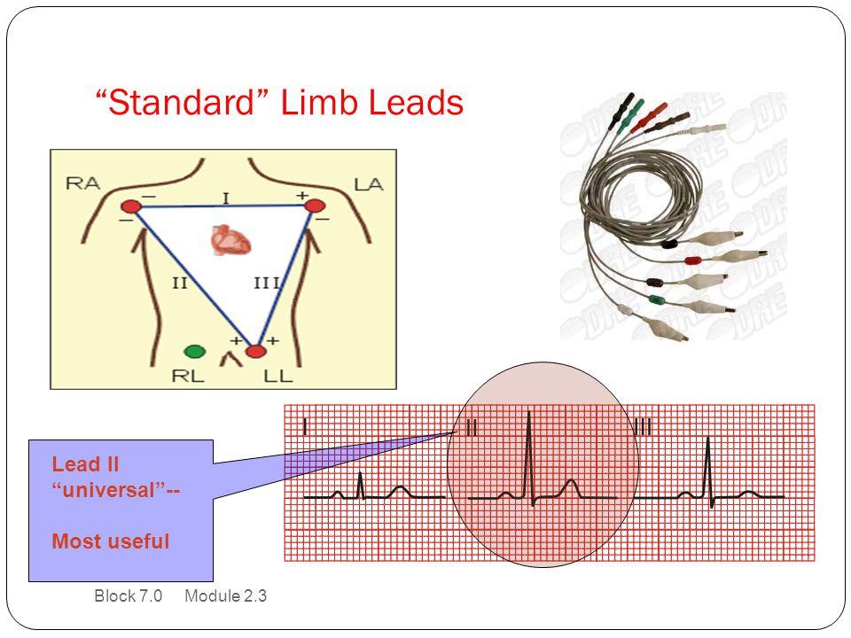 Standard Limb Leads Lead II universal -- Most useful