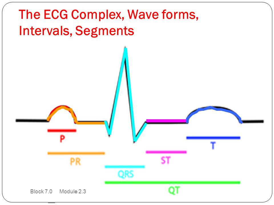 The ECG Complex, Wave forms, Intervals, Segments