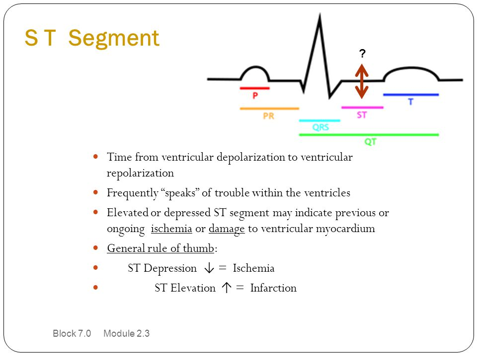 S T Segment Time from ventricular depolarization to ventricular repolarization. Frequently speaks of trouble within the ventricles.