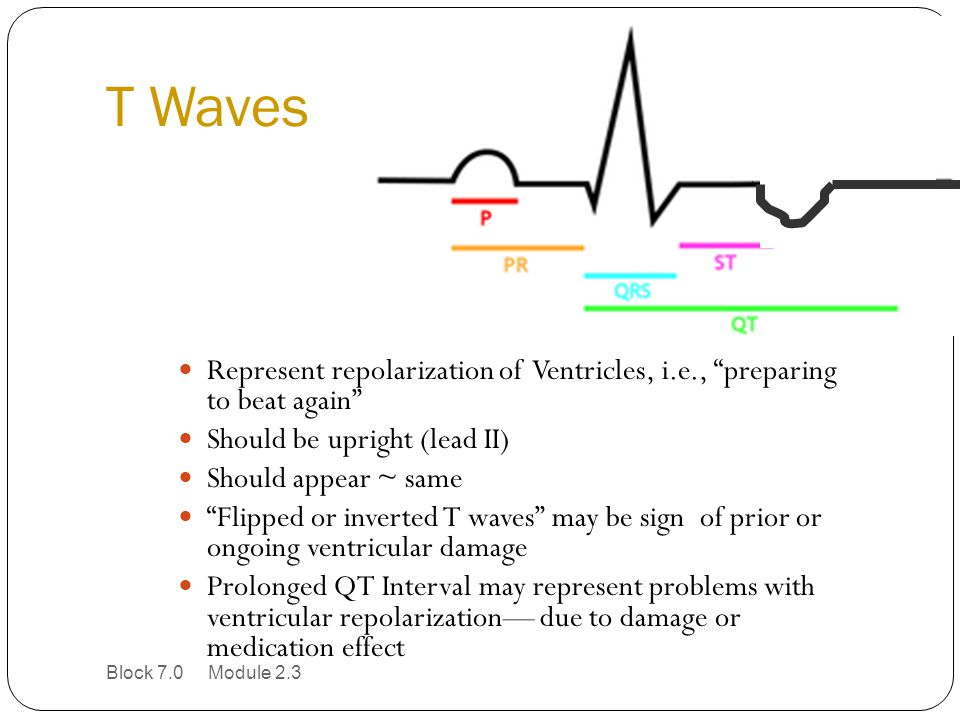 T Waves Represent repolarization of Ventricles, i.e., preparing to beat again Should be upright (lead II)