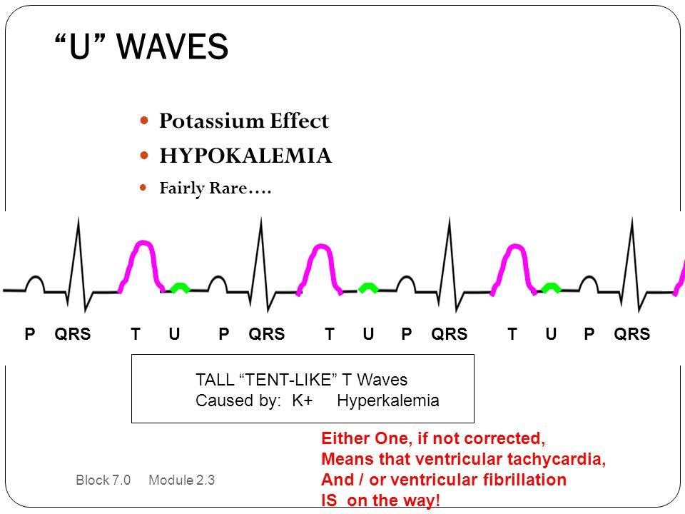 U WAVES Potassium Effect HYPOKALEMIA Fairly Rare…. P QRS T U
