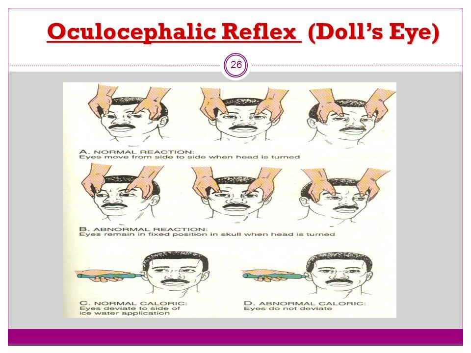 Oculocephalic Reflex (Doll's Eye)