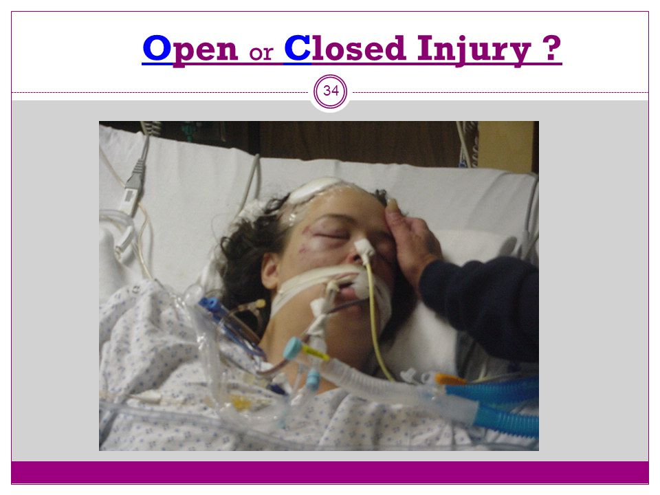 Open or Closed Injury