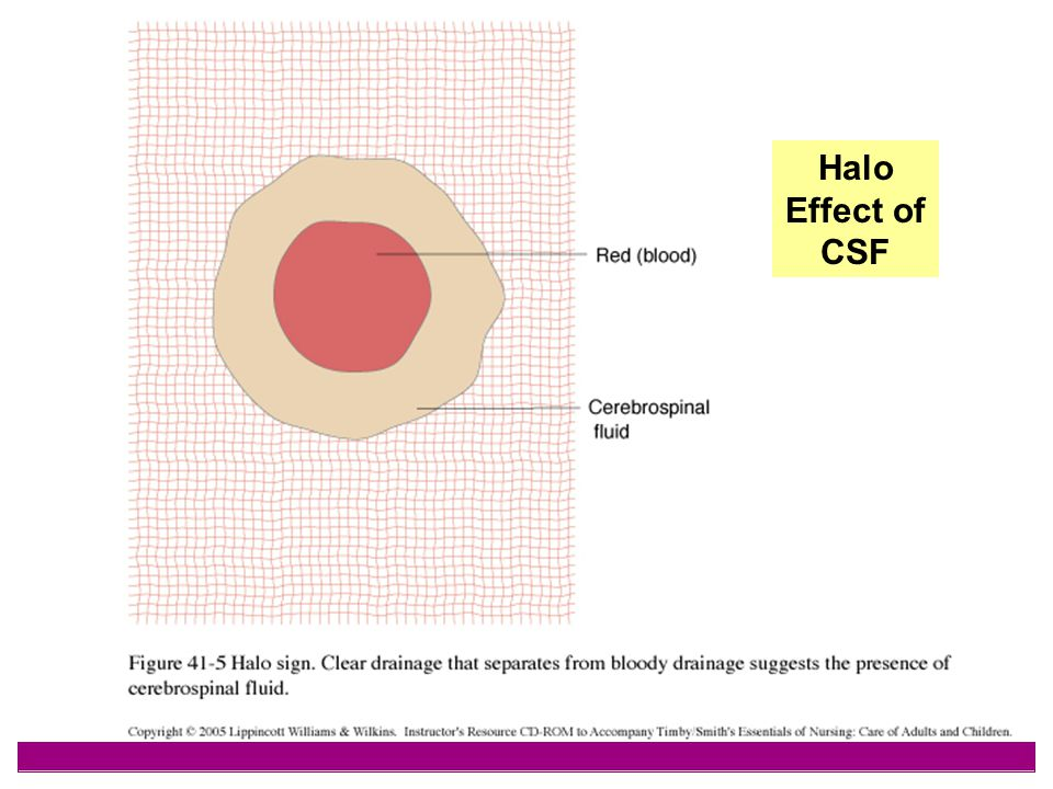 Halo Effect of CSF