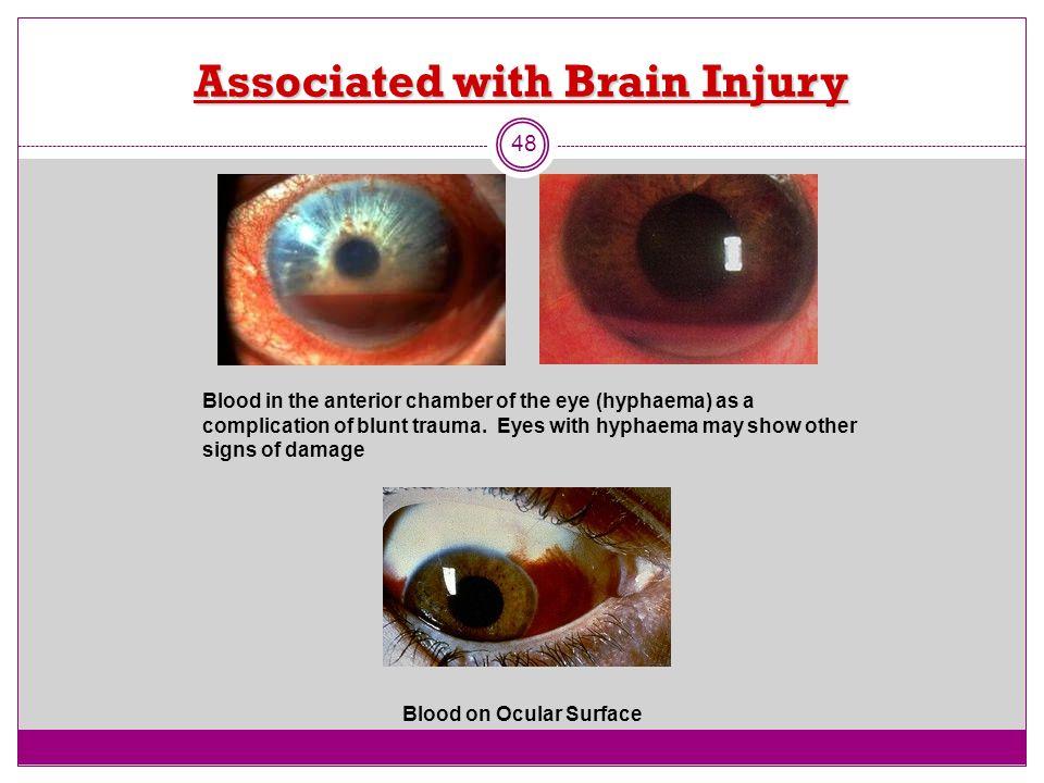 Associated with Brain Injury