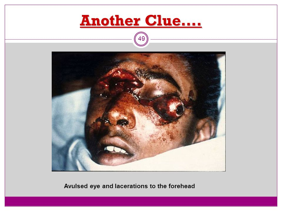 Another Clue…. Avulsed eye and lacerations to the forehead