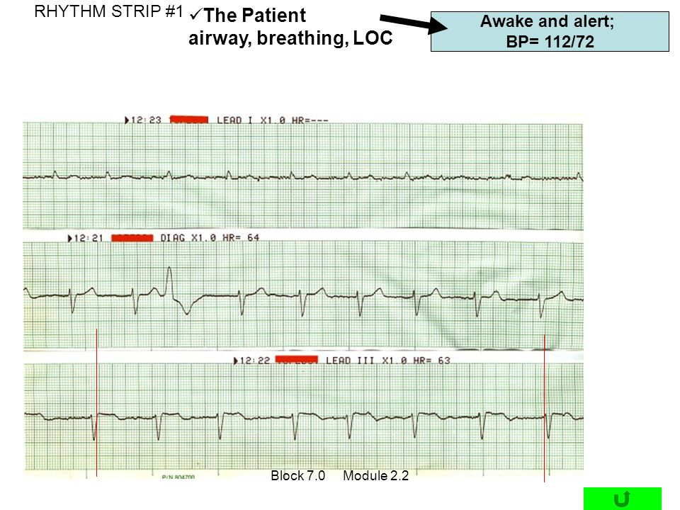 The Patient airway, breathing, LOC RHYTHM STRIP #1 Awake and alert;