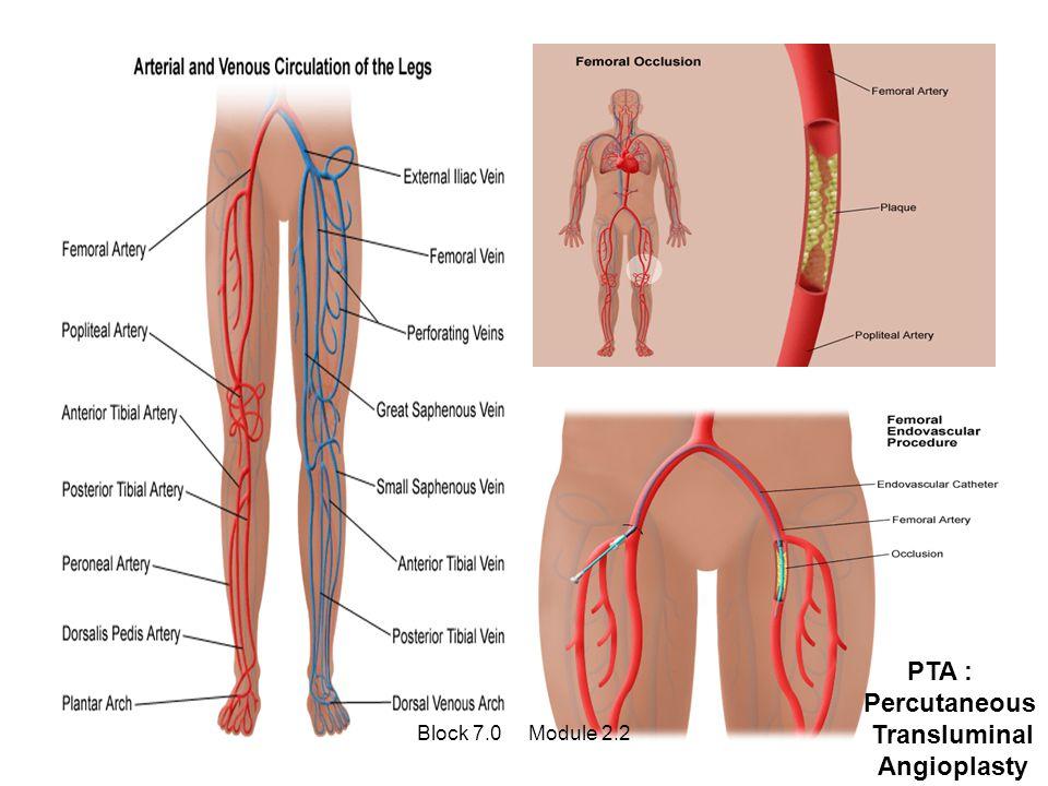 PTA : Percutaneous Transluminal Angioplasty Block 7.0 Module 2.2