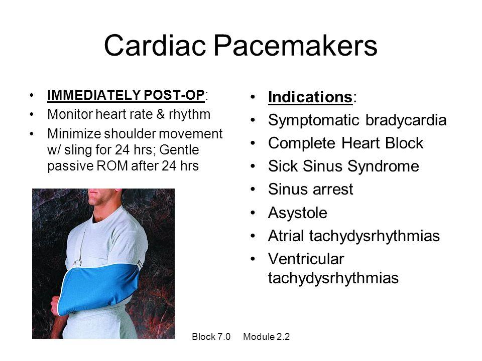 Cardiac Pacemakers Indications: Symptomatic bradycardia