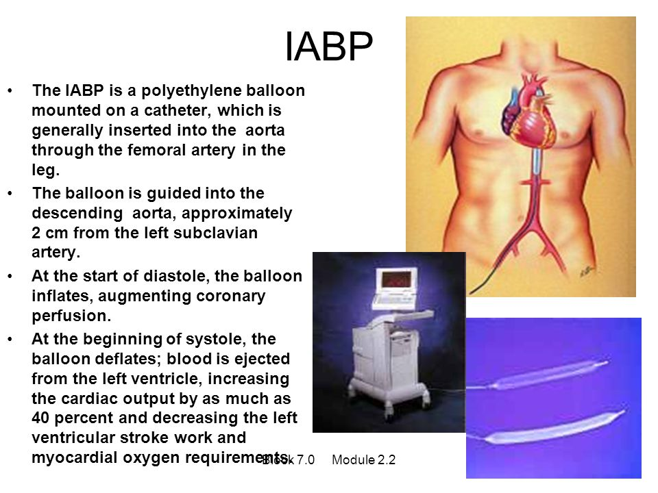 IABP The IABP is a polyethylene balloon mounted on a catheter, which is generally inserted into the aorta through the femoral artery in the leg.