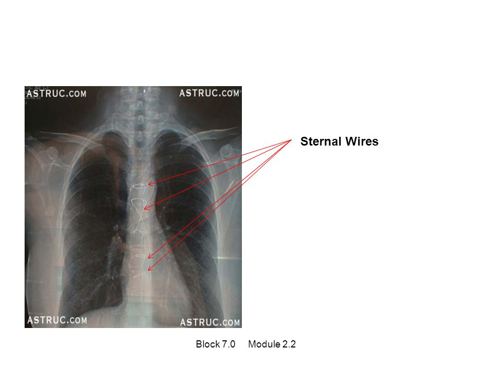Sternal Wires Block 7.0 Module 2.2