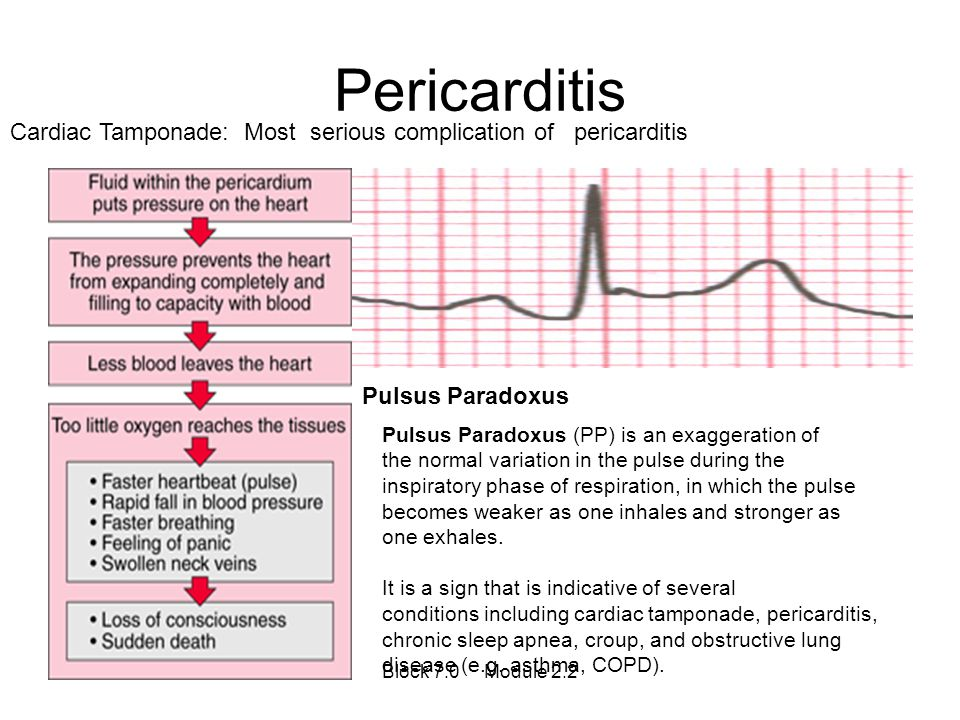 Pericarditis Cardiac Tamponade: Most serious complication of pericarditis. Pulsus Paradoxus. Pulsus Paradoxus (PP) is an exaggeration of.