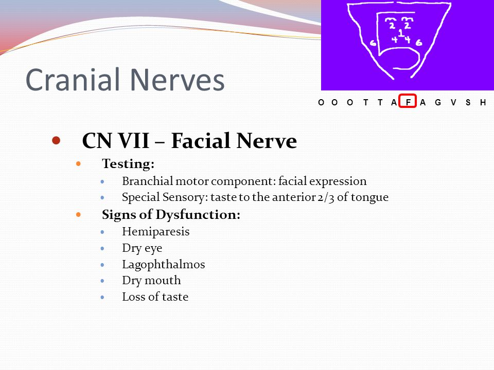 Cranial Nerves CN VII – Facial Nerve Testing: Signs of Dysfunction: