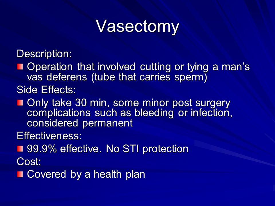 Vasectomy Description: