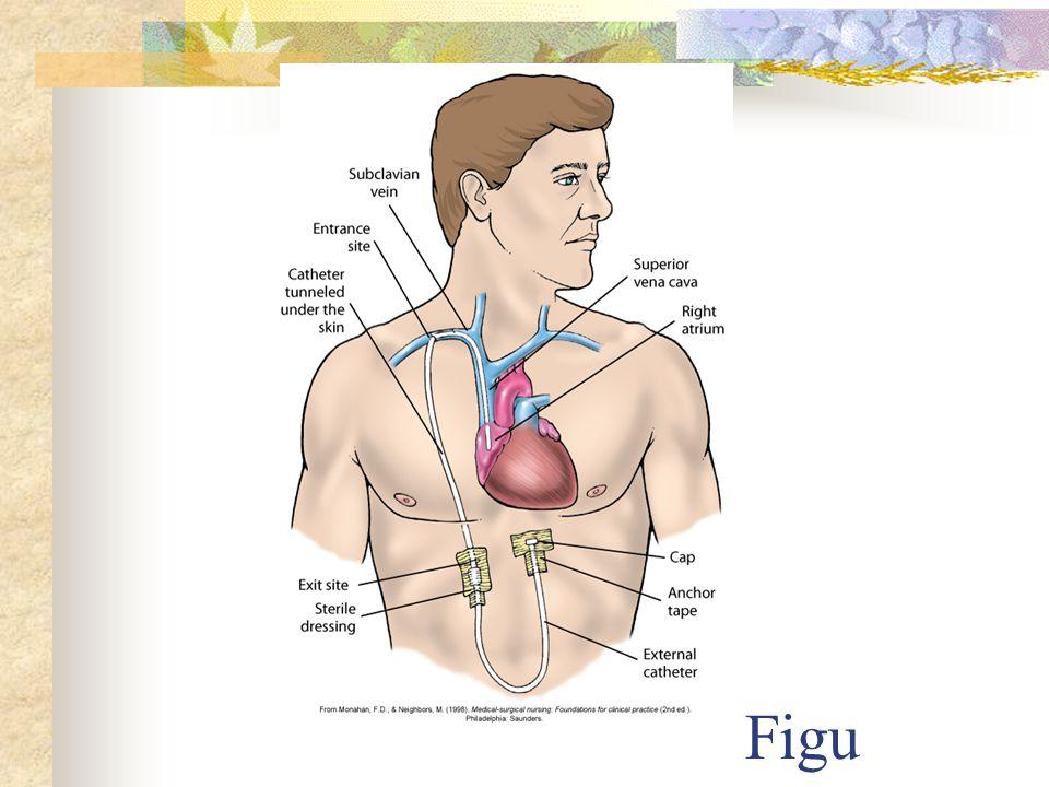 Figure 38-9