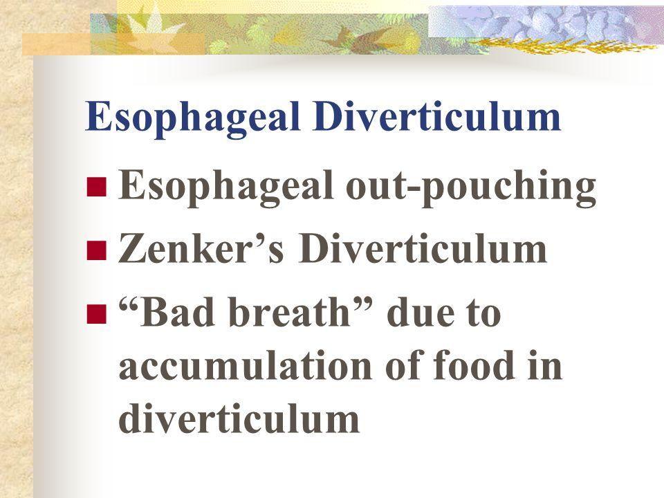 Esophageal Diverticulum