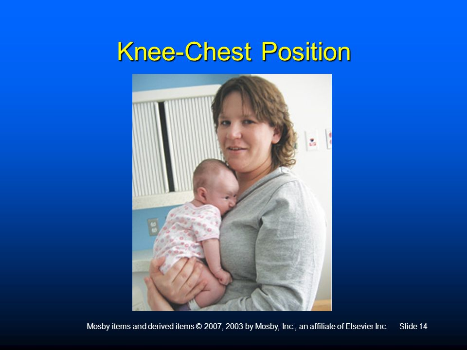 Knee-Chest Position Mosby items and derived items © 2007, 2003 by Mosby, Inc., an affiliate of Elsevier Inc.