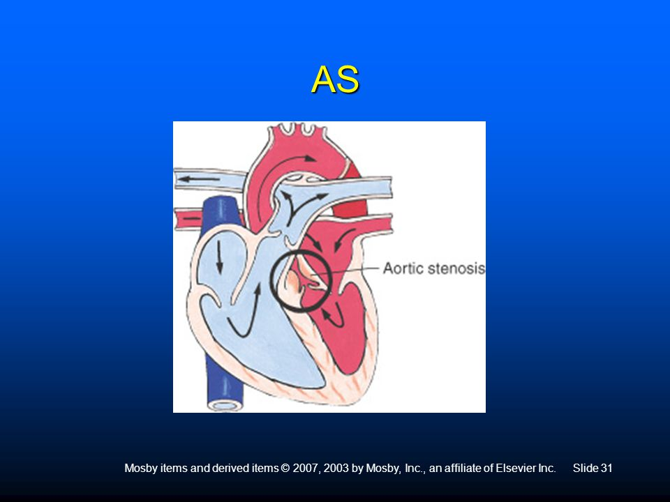 AS Narrowing of aortic valve Usually malformed in BI- rather than TRI-cuspid valve.