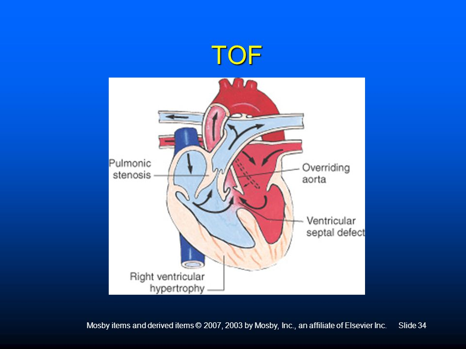 TOF Tetralogy of Fallot: Tetra means 4. 4 Defects are: VSD