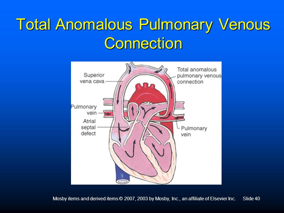 Total Anomalous Pulmonary Venous Connection