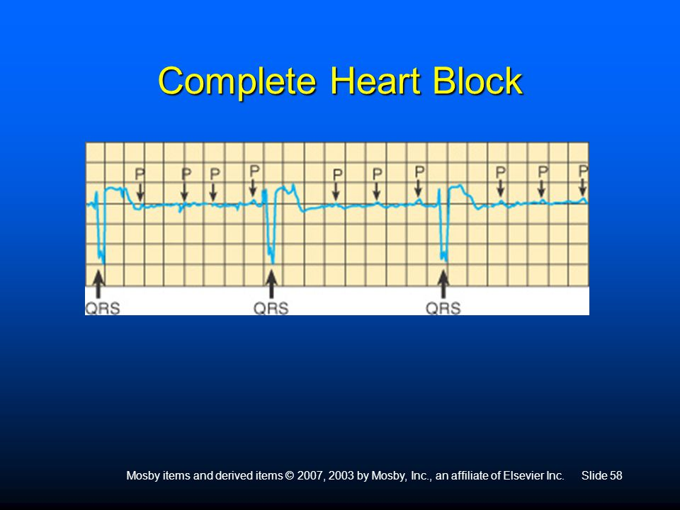 Complete Heart Block Mosby items and derived items © 2007, 2003 by Mosby, Inc., an affiliate of Elsevier Inc.