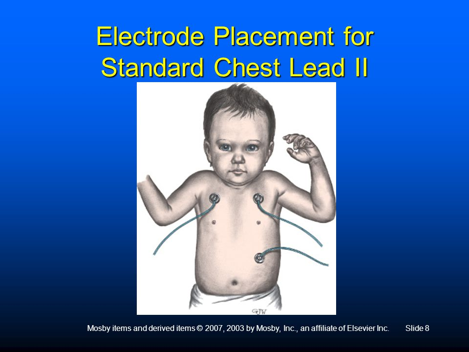 Electrode Placement for Standard Chest Lead II