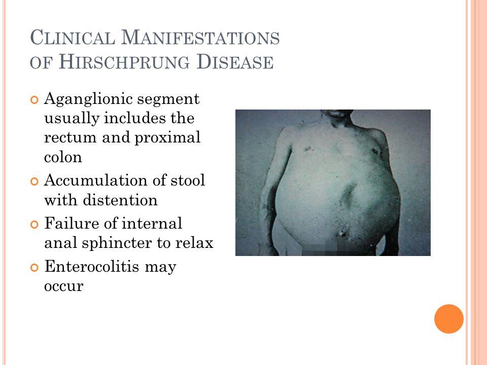 Clinical Manifestations of Hirschprung Disease