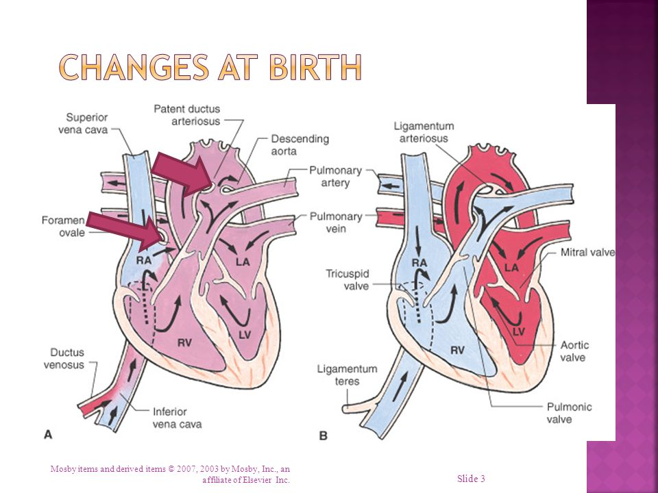 Changes at Birth Fetal: Blood enters from umbilical vein To liver