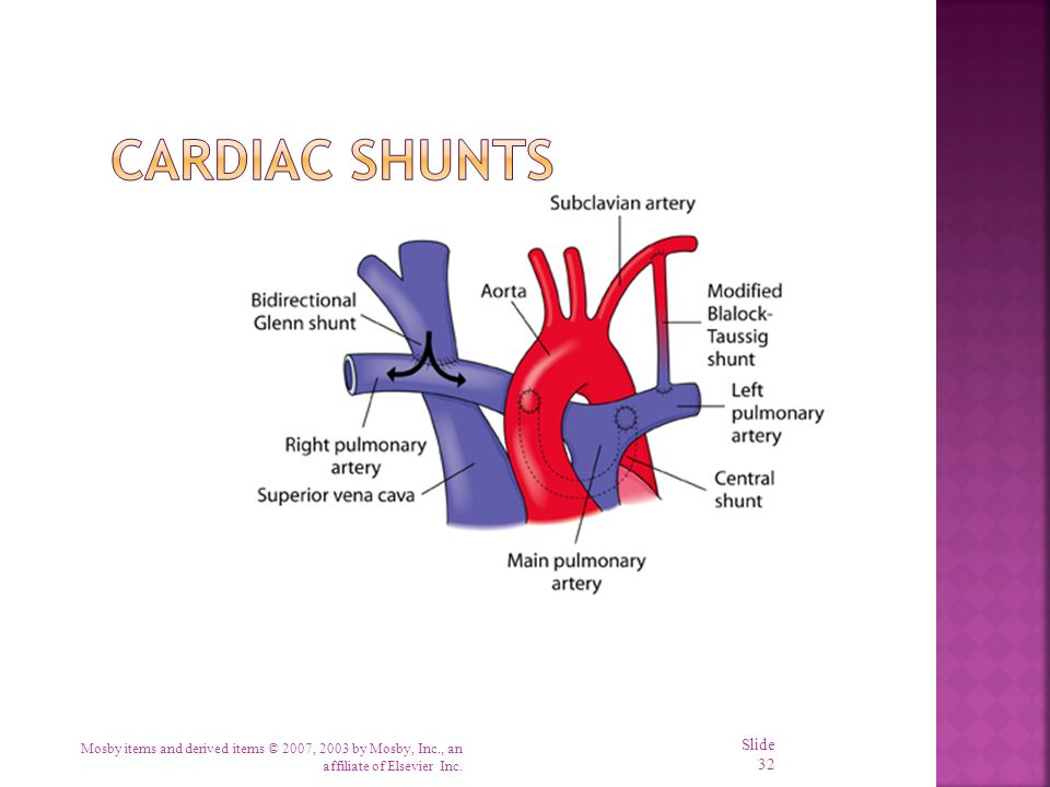 Cardiac Shunts Mosby items and derived items © 2007, 2003 by Mosby, Inc., an affiliate of Elsevier Inc.