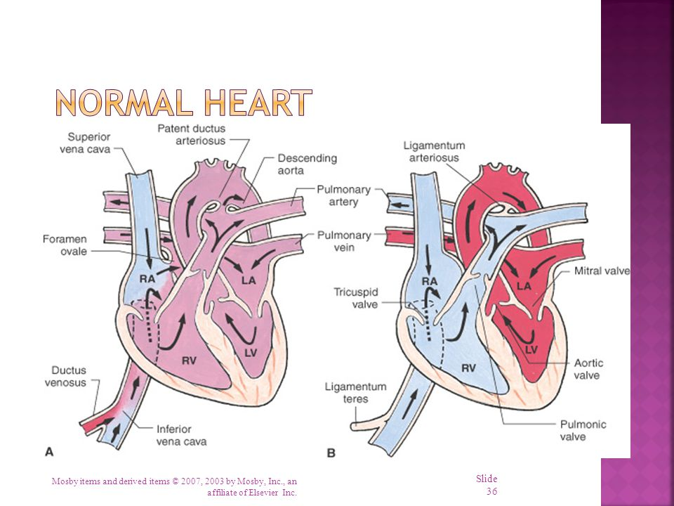 Normal Heart Remember what normal heart looks like