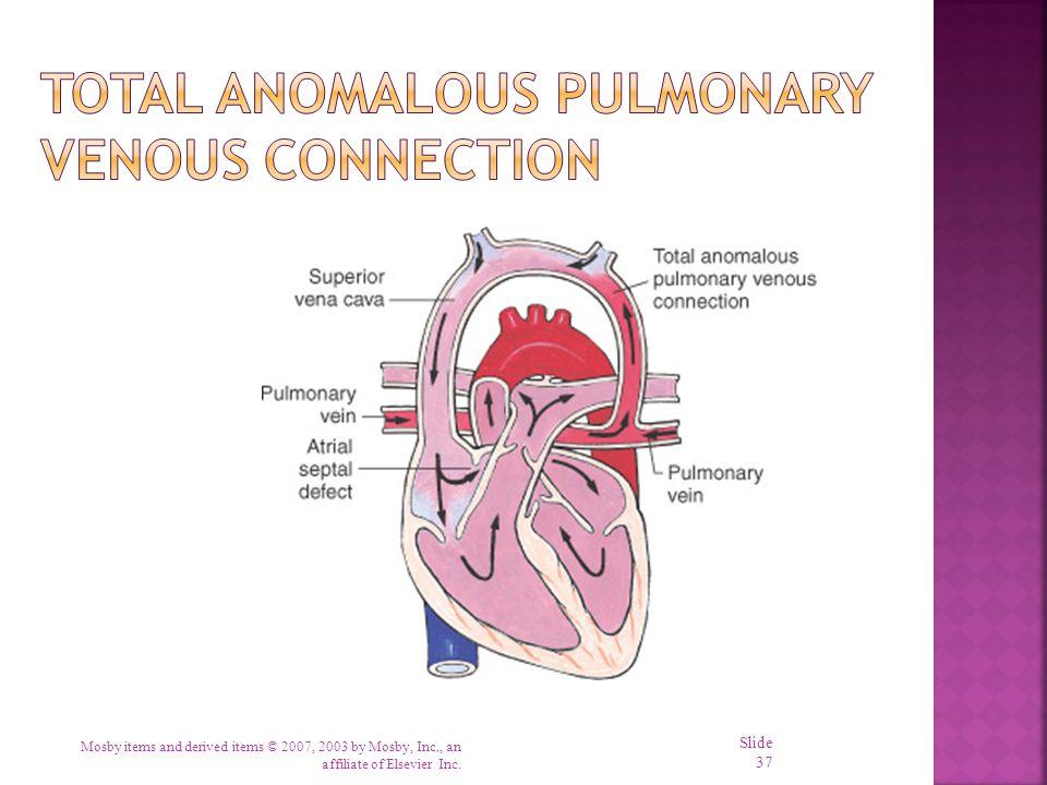 Total Anomalous Pulmonary Venous Connection