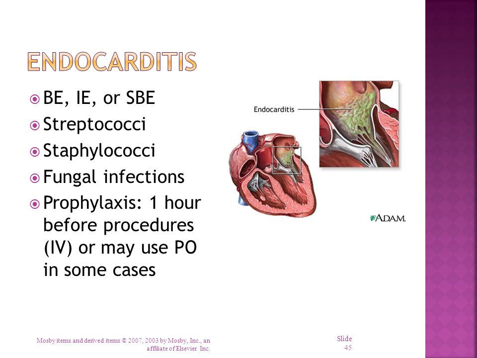 Endocarditis BE, IE, or SBE Streptococci Staphylococci