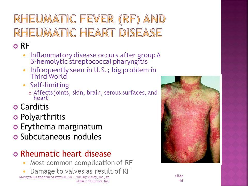 Rheumatic Fever (RF) and Rheumatic Heart Disease