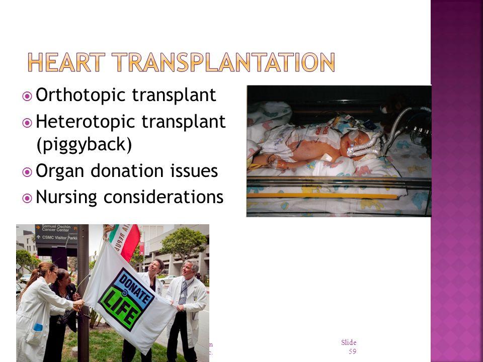 Heart Transplantation